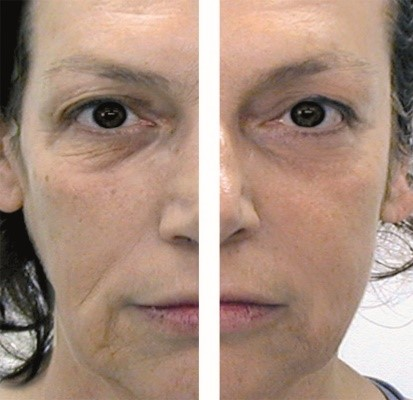 CACI Non Surgical Face Lift including Hydratone